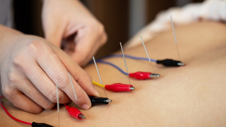 Acupuncture with electric treatment