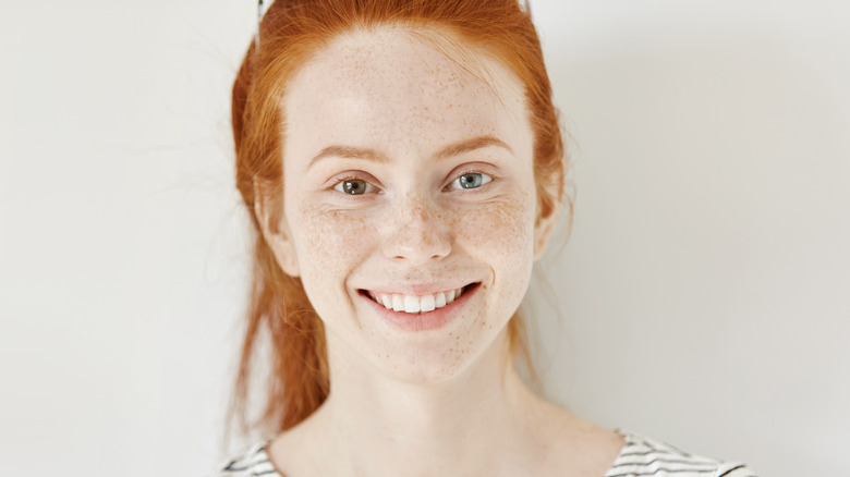 Woman with rare body features of heterochromia and red hair