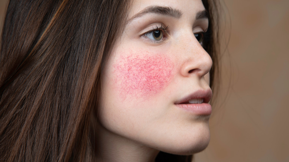 Brunette woman with rosacea