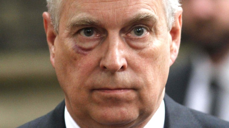 Prince Andrew with black eye