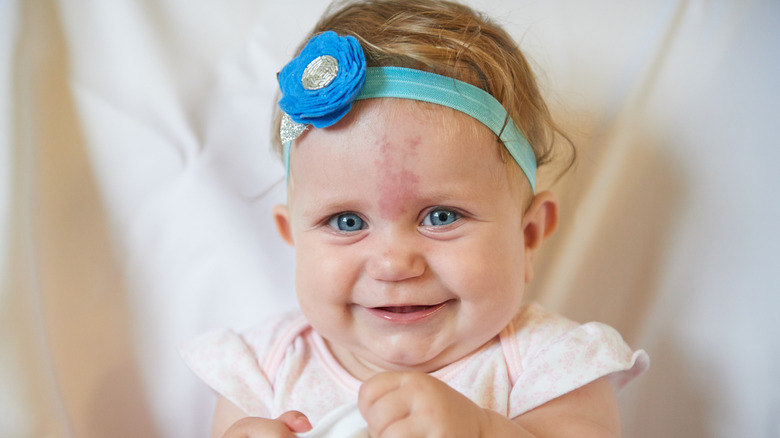 The untold truth of birthmarks