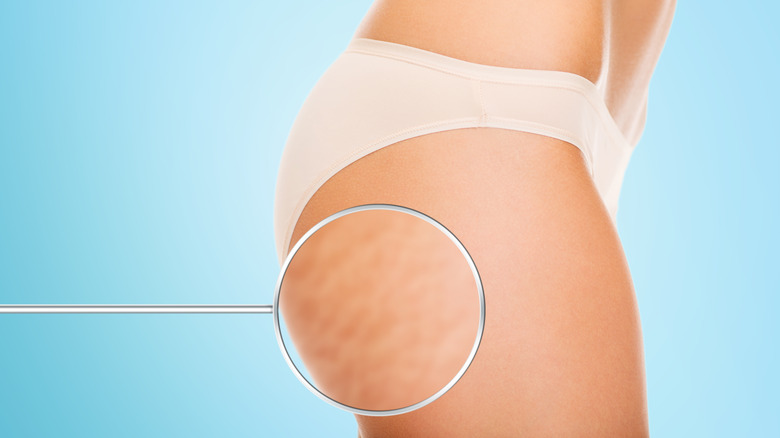 close up image of cellulite