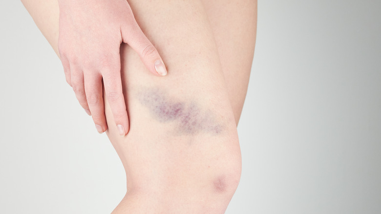 What Does It Mean When You Bruise Easily? - The List