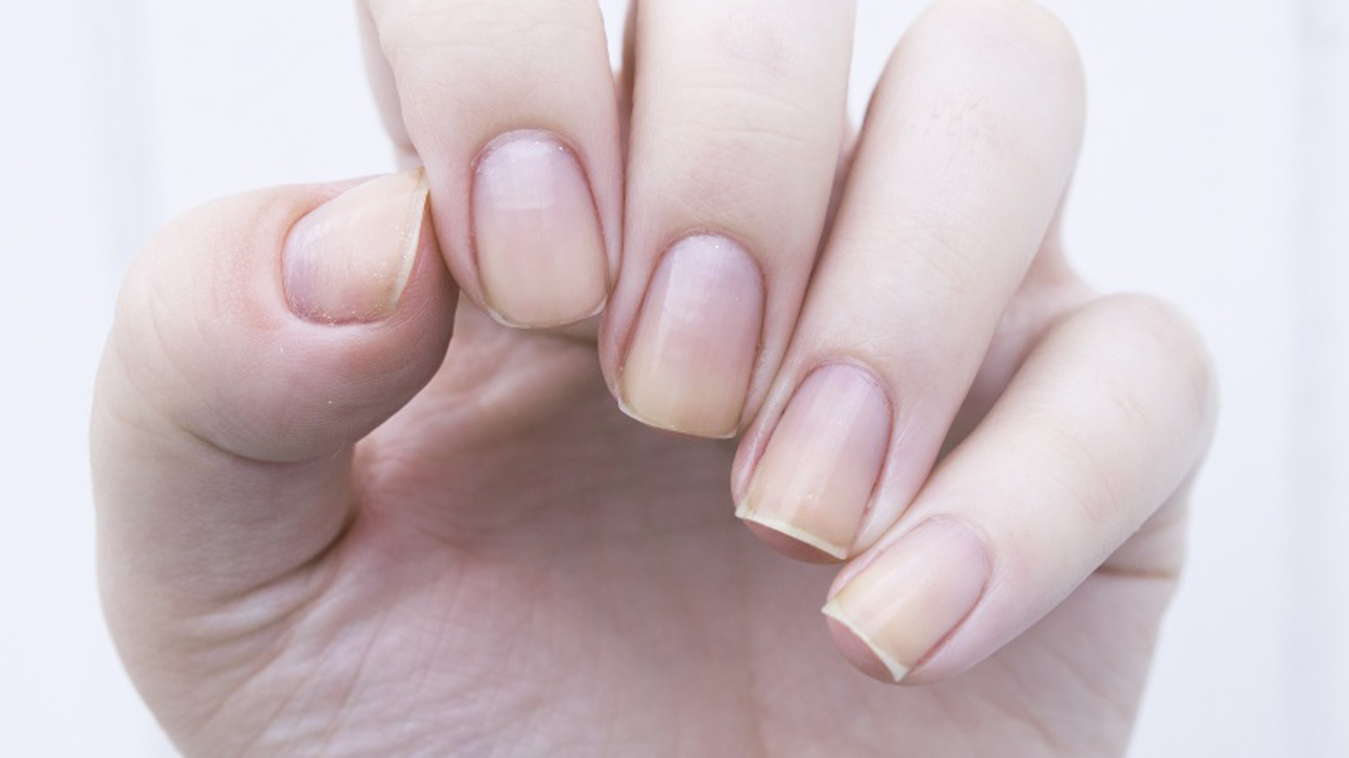 10 Mistakes That Are Destroying Your Nails